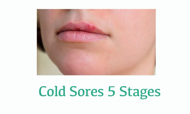 The Five Stages of Cold Sores