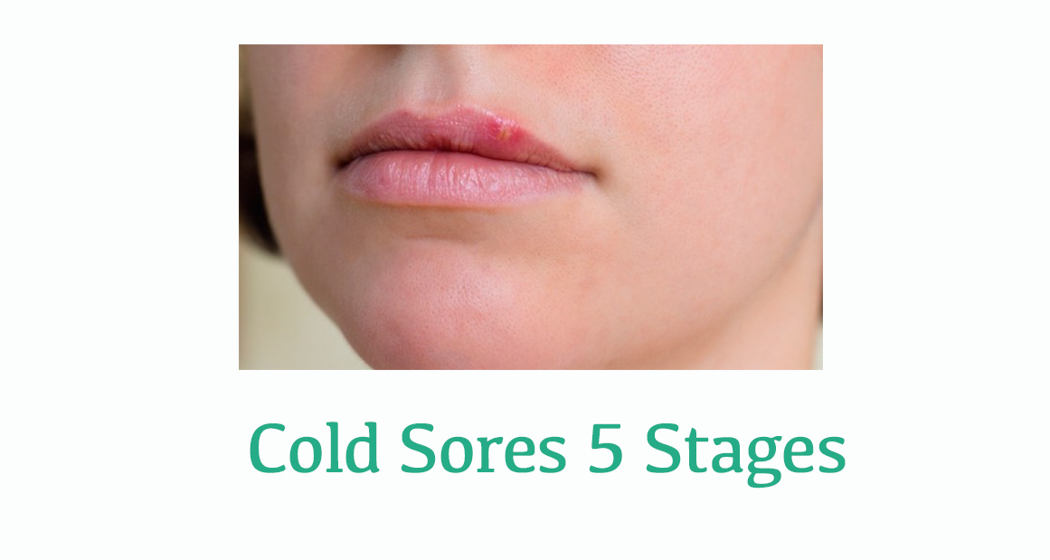 Cold sore yellow crust stage